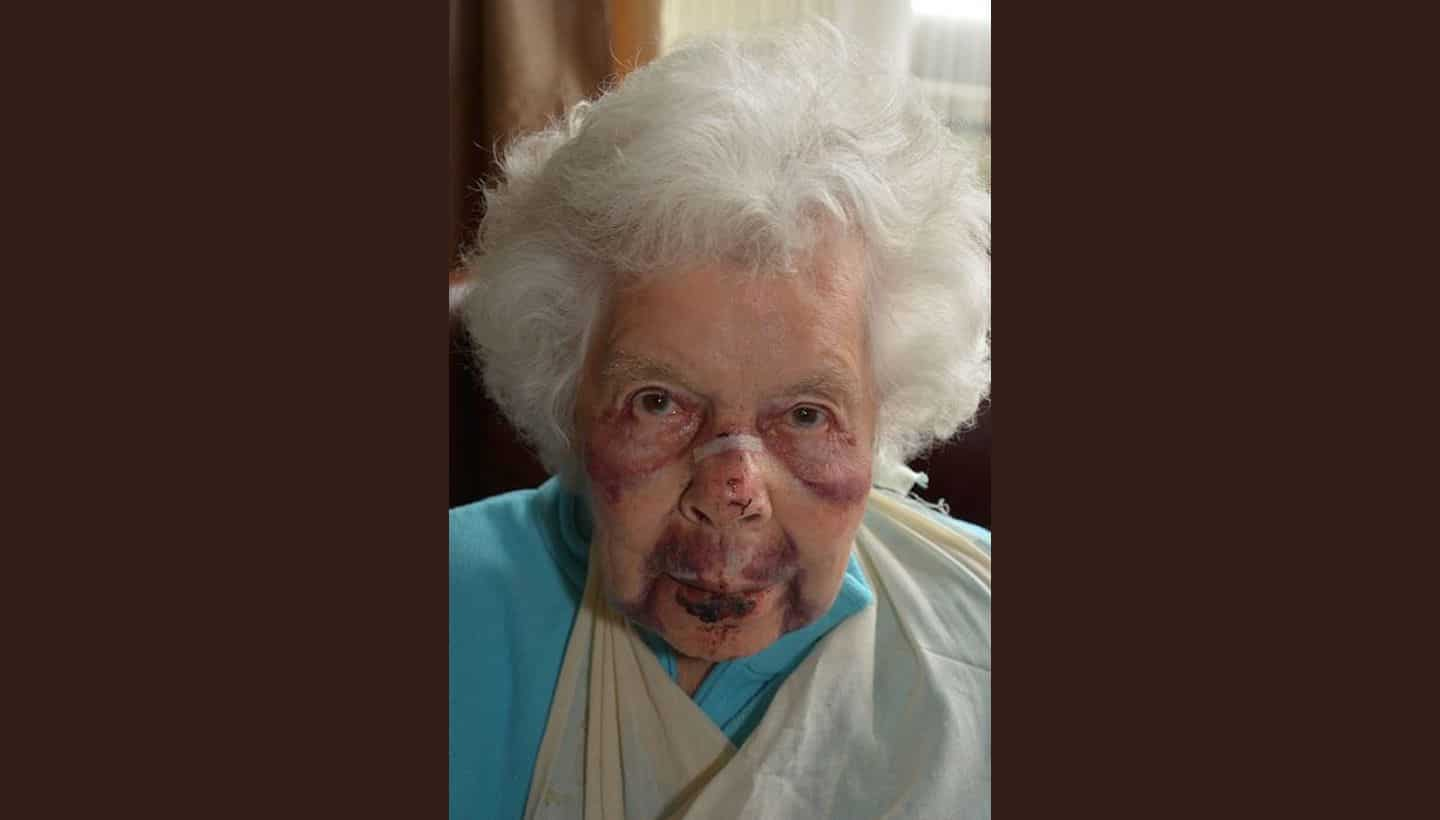 Photos issued of 88-year-old robbery victim as part of appeal for information