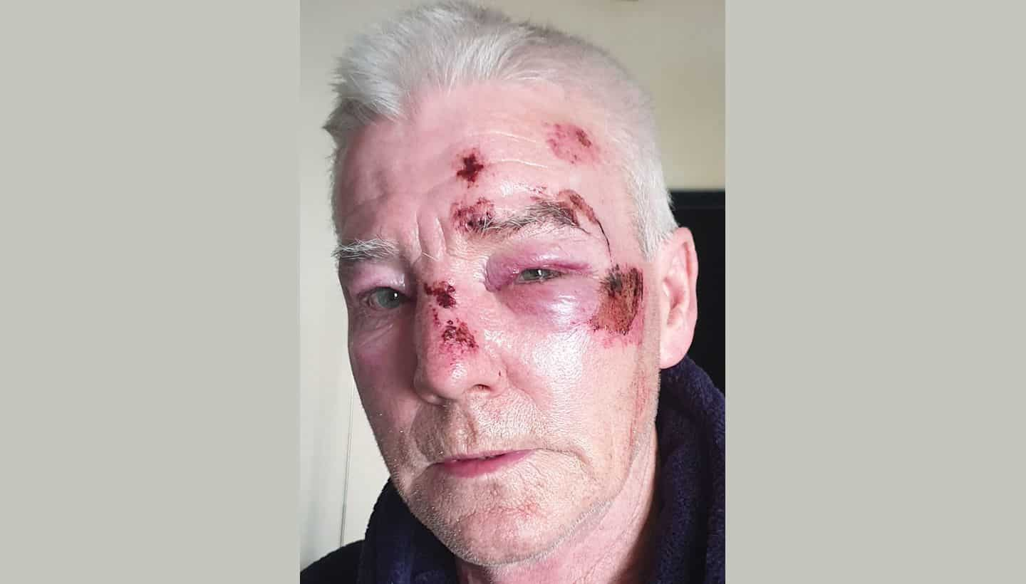 Appeal for information after unprovoked attack on man – Fishponds